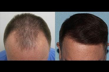 Smart Graft Hair Transplant in Winnipeg