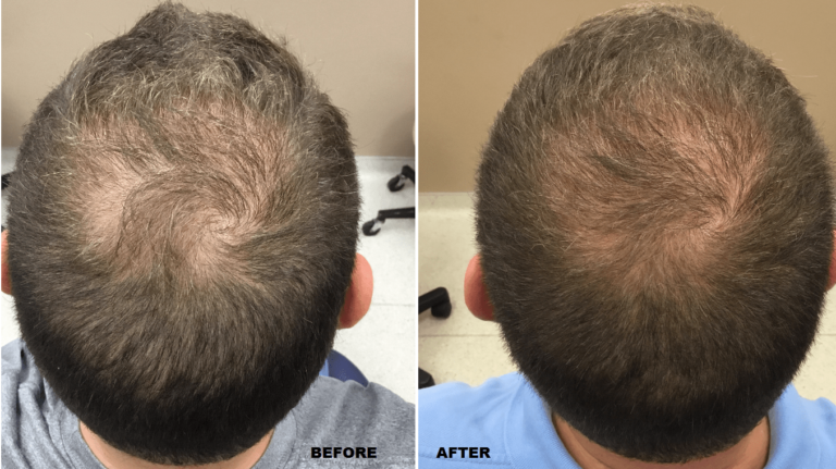 prp hair transplant before and after