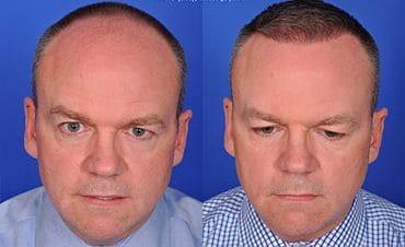 Smart graft hair transplant Winnipeg