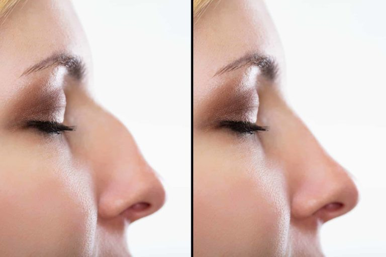 Before And After Plastic Surgery Of The Nose
