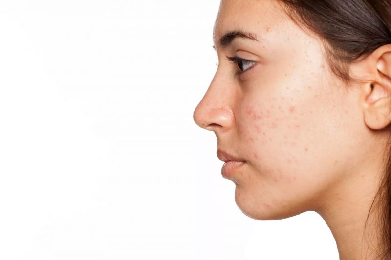 Acne Buster Woman Photo
