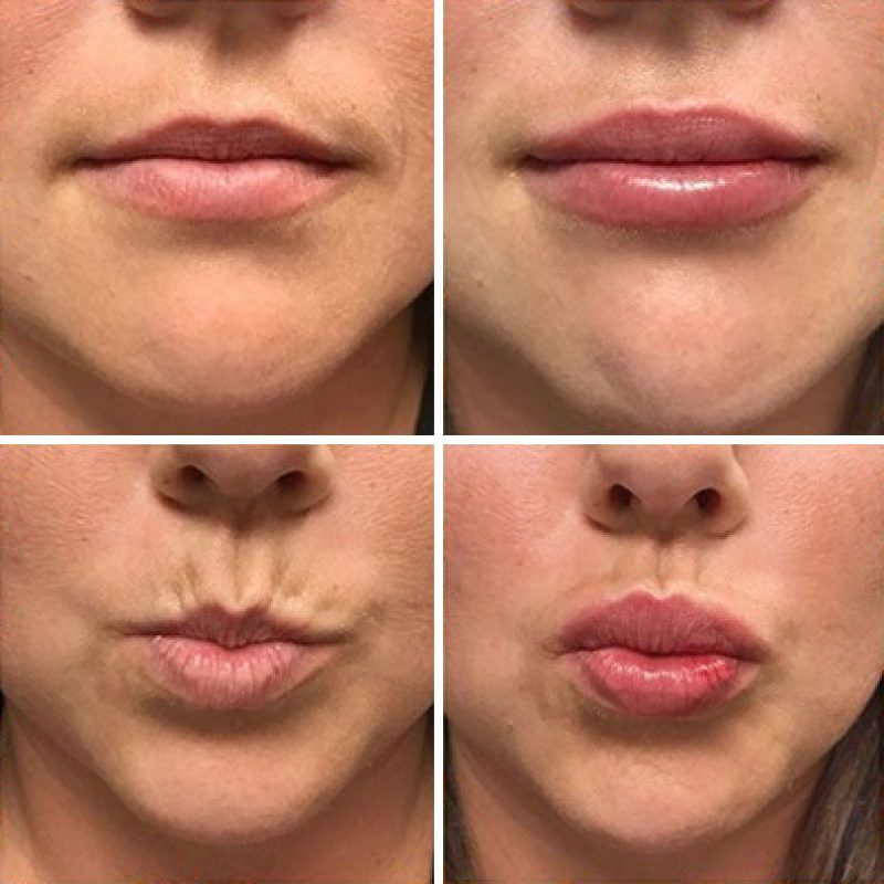 What to Know About Lip Fillers and How to Choose the Best One For You