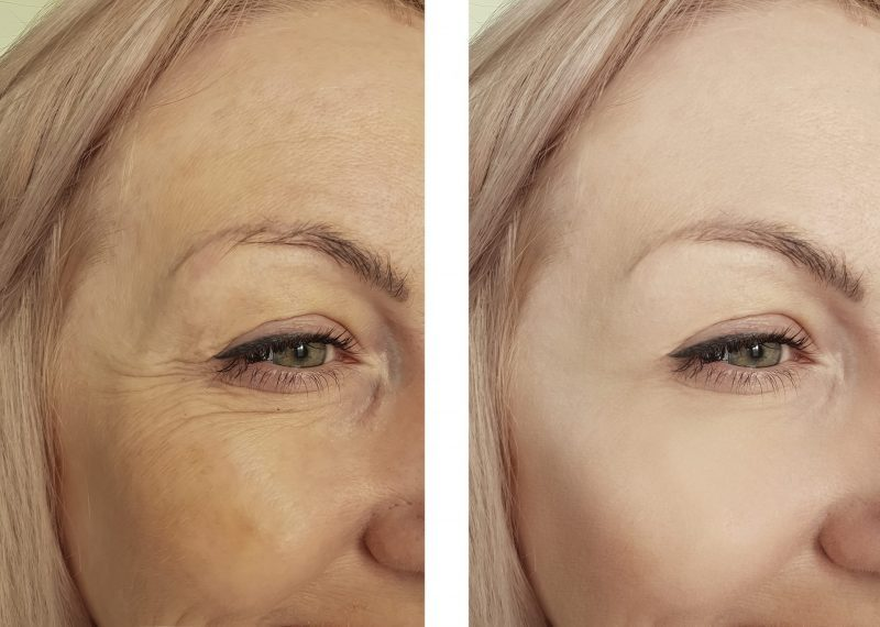 Botox winnipeg before and after