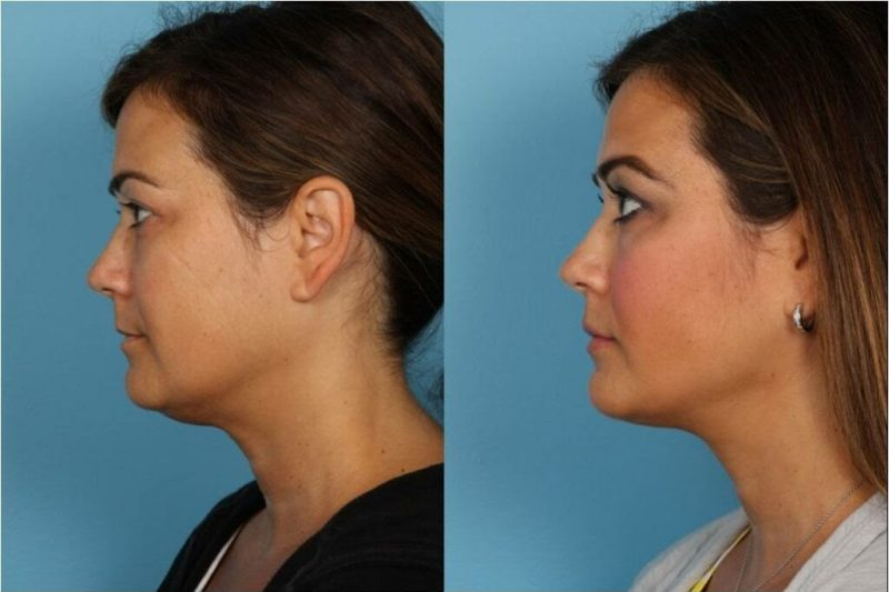 Things to Consider Before Getting a Facelift or Necklift